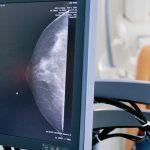 exame-mamografia
